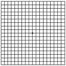 Amd Eye Chart 6 Important Amsler Grid Steps For Macular Degeneration