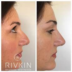beautiful before and after non surgical nose nsnj