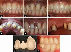 Crown Margin Design Periodontal Considerations Determining The Design And