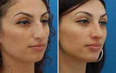 rhinoplasty nyc nose surgery septoplasty