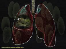 Emergenmed Health Blog Neumon 237 A Bacteriana