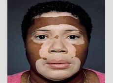 Skin Depigmentation   Causes, Symptoms, Treatment
