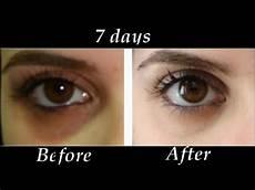Dark And Light How To Get Iron How To Remove Under Eye Dark Circles In 7 Days Diy Dark