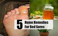5 top home remedies for bed sores remedy