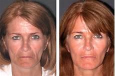 liquid facelift non surgical facelift expert new york