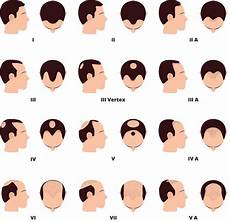 Pattern Baldness Surgical And Natural Treatments