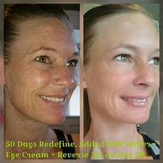 my friend lj before and after rodan fields redefine