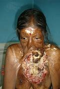 Image result for penile cancer