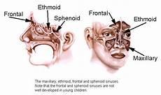Sinus Anatomy Sinusitis Sydney Sinus Infection Australia Sinus
