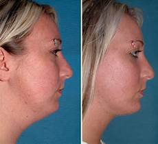 chin liposuction all the difference in the world