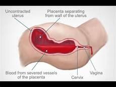 Postpartum Hemorrhage Postpartum Hemorrhage Youtube