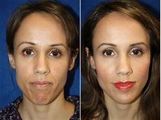 dermal fillers pictures boston ma patient 8816