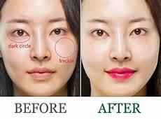 bb glow meso skin treatment