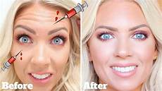 botox touch up at laseraway before after actual