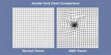 Amd Eye Chart Age Related Macular Degeneration Amd Insight Eye Clinic
