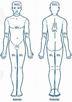 Burn Chart Body Burn Classification Burns And Occupational Therapy