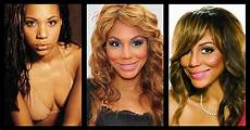 topsi news plastic surgery before and after