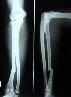 Galeazzi Fracture 301 Moved Permanently