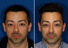 bulbous tip rhinoplasty in seattle rhinoplasty surgeon