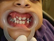 Dental Caries Dental Caries Tooth Decay In Children Health Care 171 Qsota 187
