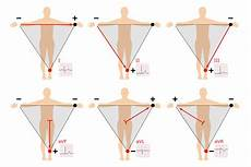 Ecg Placement Chart 12 Lead Ecg Placement Guide With Illustrations