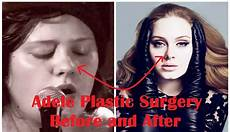 adele plastic surgery before and after hd
