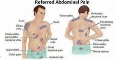 Referred Chart Referred Nursing Pinterest Abdominal
