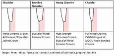 Crown Margin Design Image Result For Shoulder Finish Line Dentistry Resin