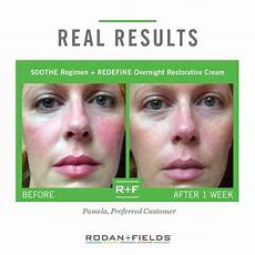 rodan and fields soothe regimen rodan and fields