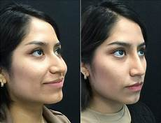 non surgical rhinoplasty before and after photos fairfax