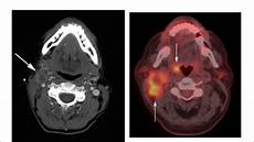 Oropharynx Cancer Hpv And Oropharynx Cancer Youtube