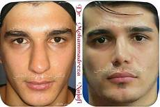 rhinoplasty before and after bulbous tip all about