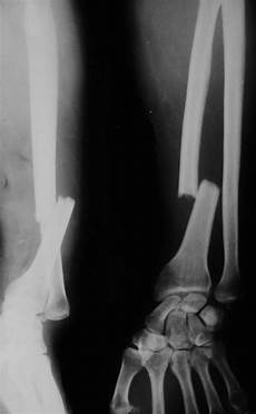 Galeazzi Fracture Fall On To Outstretched Hand Or Foosh Injuries Bone And