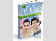 Michael Dawson's Natural Vitiligo Treatment System Review