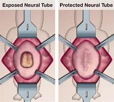 Myelomeningocele Repair Spina Bifida Myelomeningocele Ucsf Fetal Treatment Center