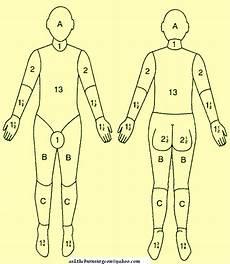 Burn Chart Body Ask The Burn Surgeon For Free 2009 11 22