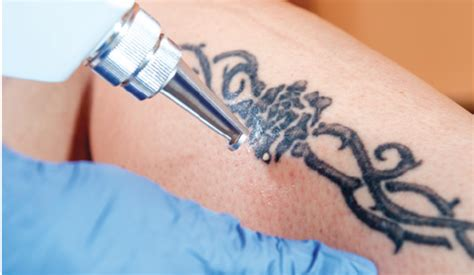 special feature tattoo removal aesthetics