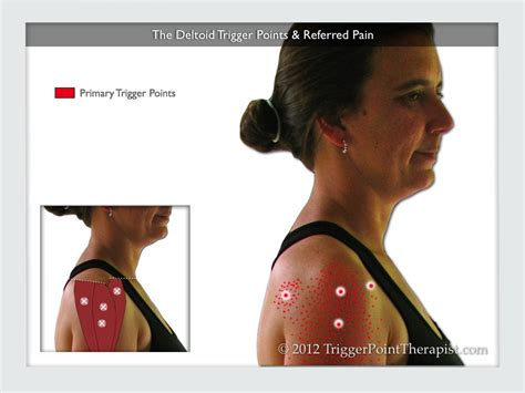 Referred Shoulder After C Section by Deltoid Trigger Points What You See Is What You Get