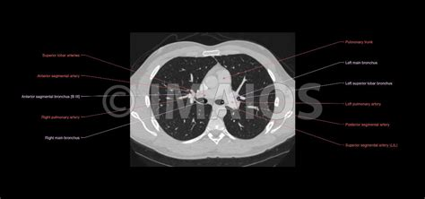 cross sectional ct anatomy anatomy of the thorax ct