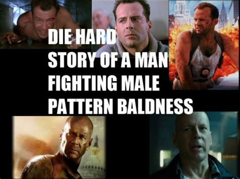 Baldness Meme - straight no chaser about hair loss and male pattern