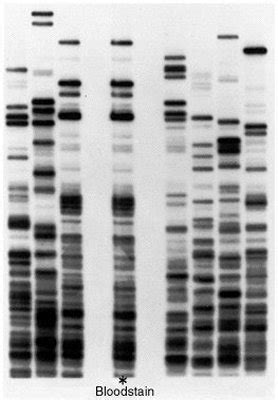 dna fingerprinting lab report sle dna fingerprinting electrophroesis biologyhnrs 4th2016