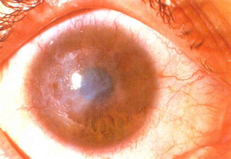 Chlamydia Blindness Who Priority Eye Diseases