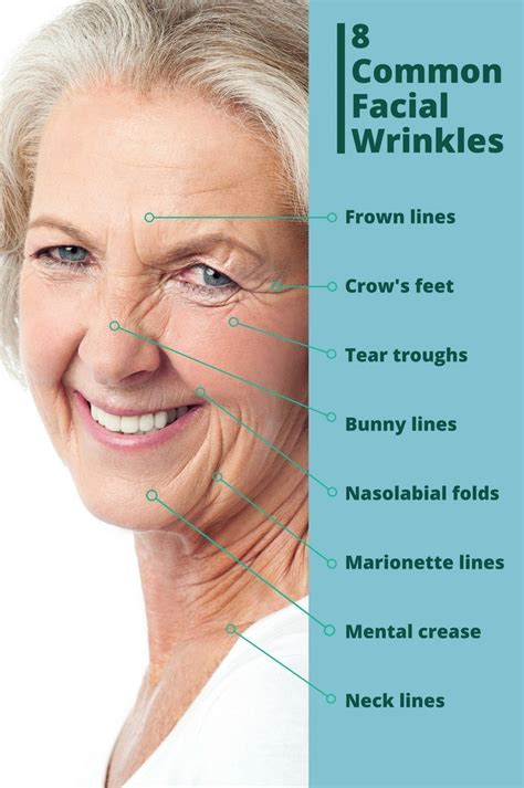 7 Wrinkle Areas And How To Treat Them by How To Get Rid Of Wrinkles Identifying Problem