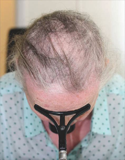 occipital hair tuft images acute diffuse and total alopecia of the female scalp