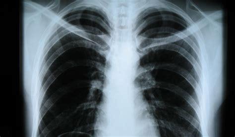 dolore gabbia toracica radiografia torace a cosa serve e quando e come si effettua