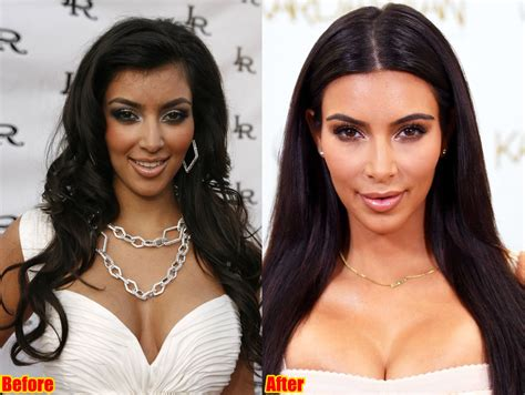 kim kardashian plastic surgery before after pictures 2015 kim kardashian before and after worldnewsinn