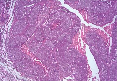 carcinoma floor of the pathology outlines squamous cell carcinoma floor of