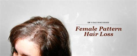 female pattern hair loss pictures dr cole discusses female pattern hair loss cole hair
