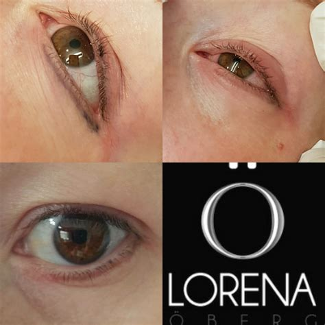 eyeliner tattoo migration removing tattooed eyeliner and eyeliner migration lorena