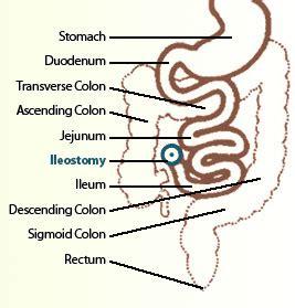 ostomies medically speaking